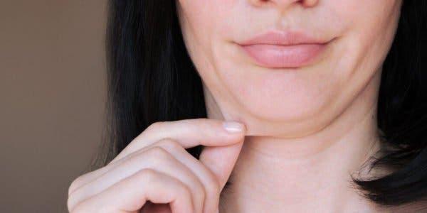 voici-comment-prevenir-et-eliminer-la-peau-relachee-naturellement