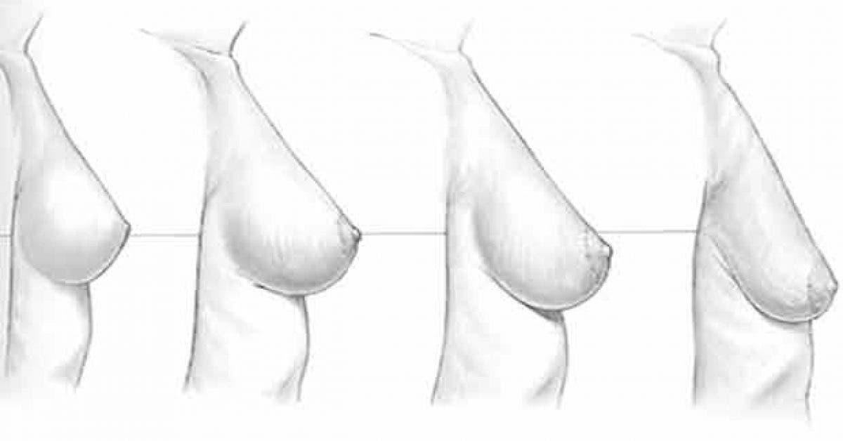 voici comment prevenir laffaissement des seins naturellement 1