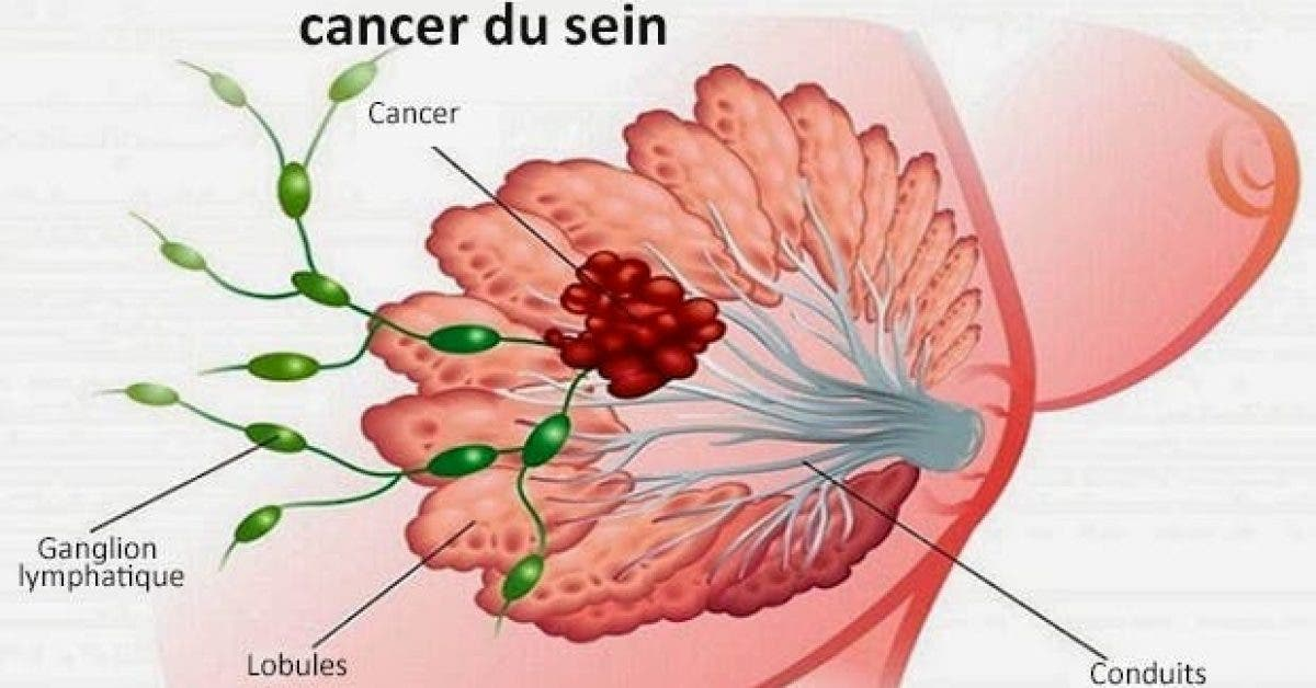 voici comment prevenir le cancer du sein 1