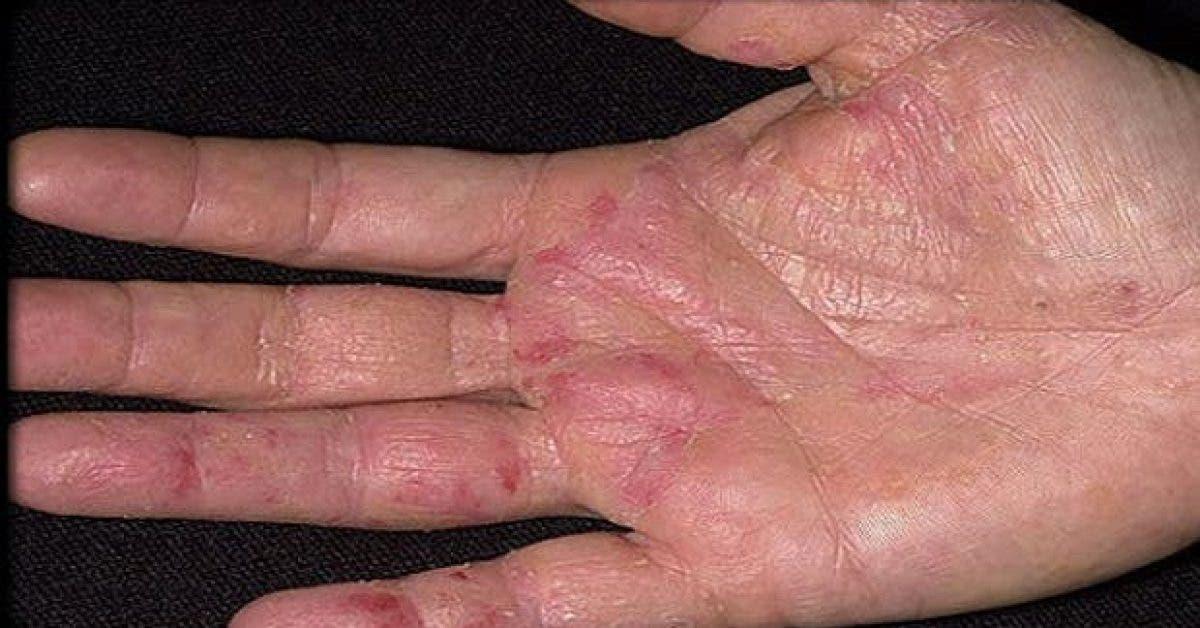 voici comment reconnaitre les premiers symptomes dun cancer apparaissent sur les mains 1