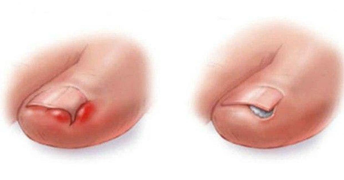 voici comment se debarrasser dun ongle incarne sans chirurgie 1