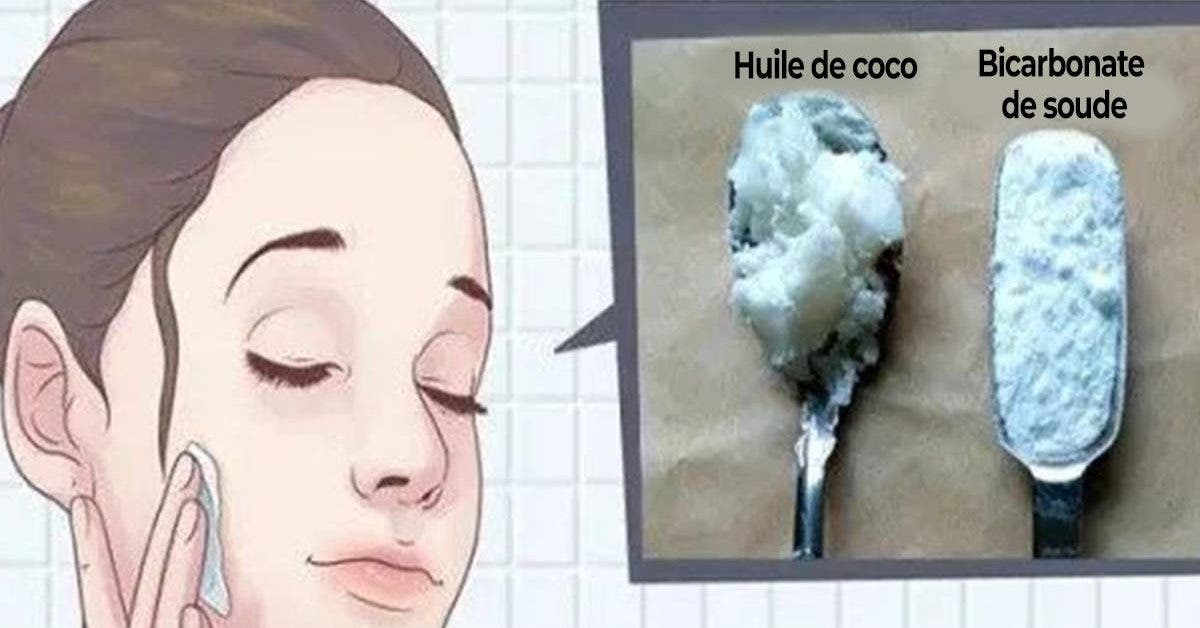 voici comment utiliser le bicarbonate de soude et lhuile de coco pour paraitre 10 ans plus jeune 1