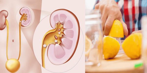 Voici comment vous débarrasser des calculs rénaux juste avec du citron