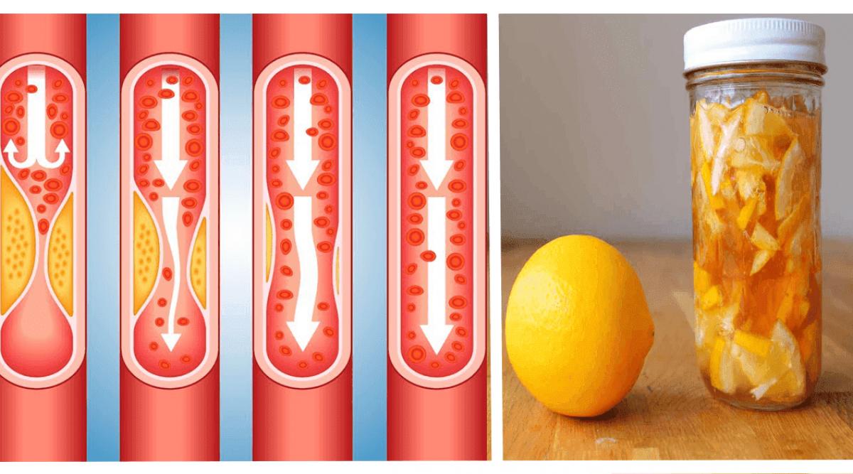 Voici pourquoi les cardiologues demandent à leurs patients de consommer cette recette au citron