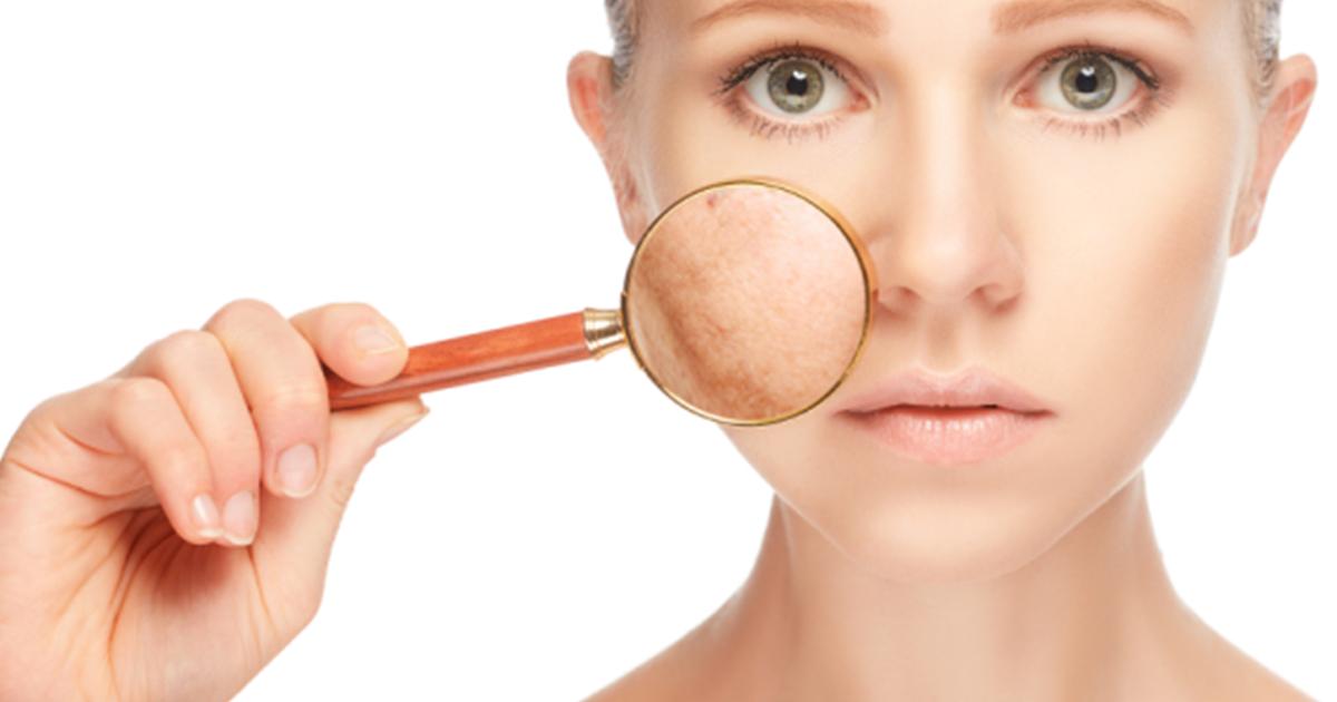 Voici Comment Réduire Vos Grains De Beauté Verrues Acrochordons Et Taches Brunes