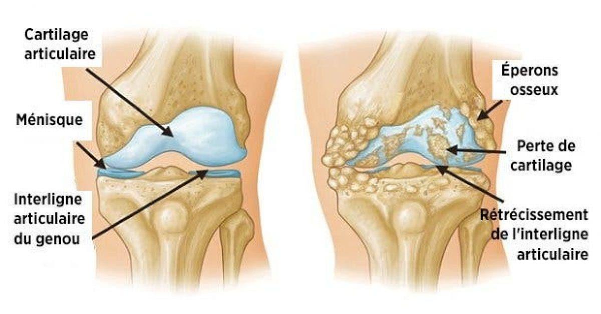 voici un produit miracle pour dire adieu aux douleurs articulaires et du genou en moins dune semaine 1