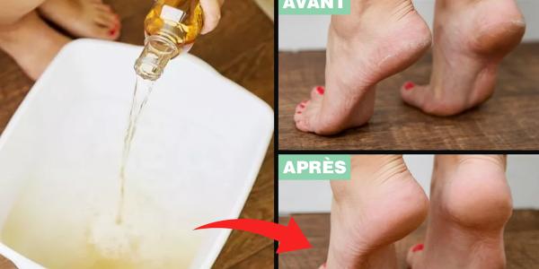 voici-une-astuce-au-vinaigre-pour-adoucir-les-pieds-secs-et-fissures