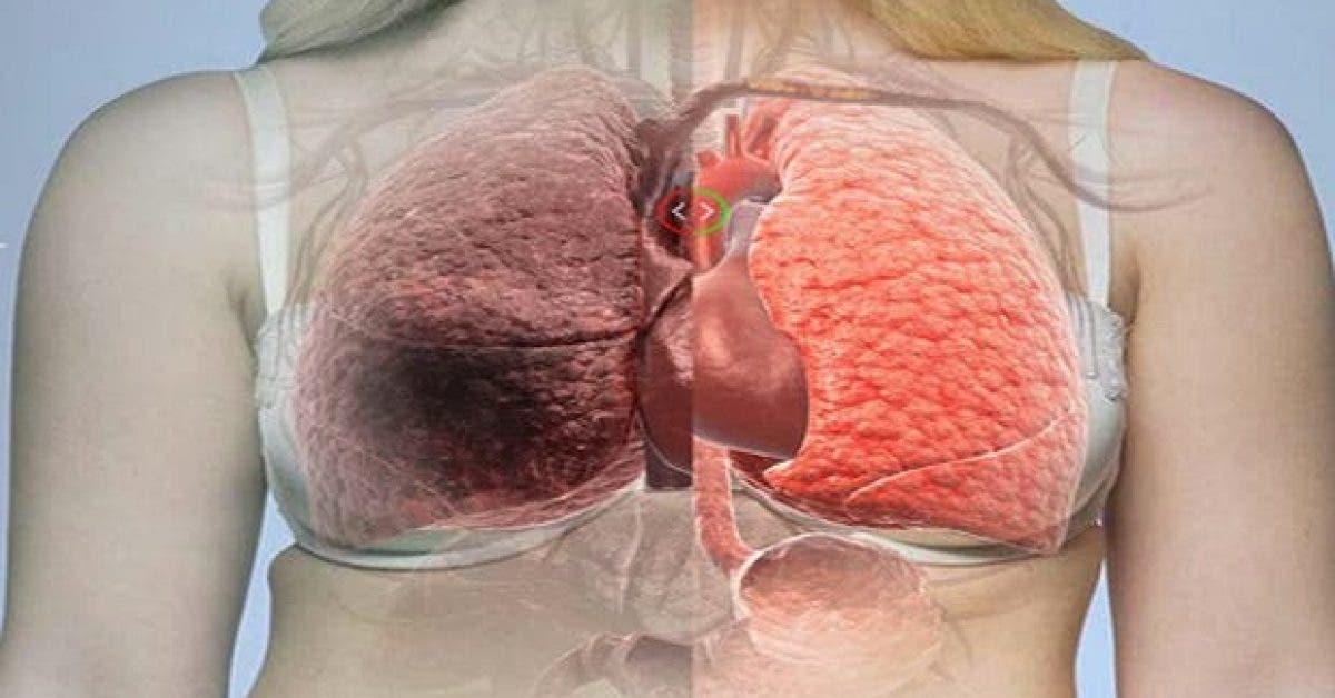 voici une des causes principales du cancer du poumon vous nallez pas le croire 1