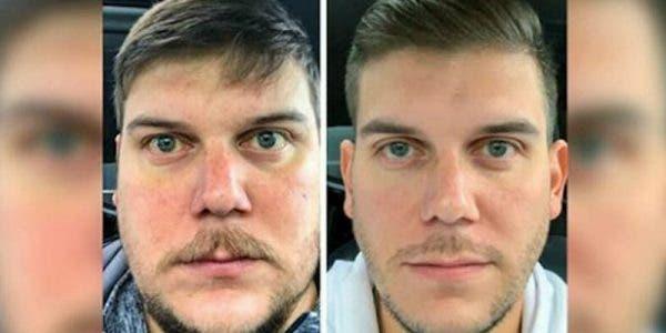 votre-corps-subit-des-changements-incroyables-lorsque-vous-arretez-lalcool-pendant-28-jours