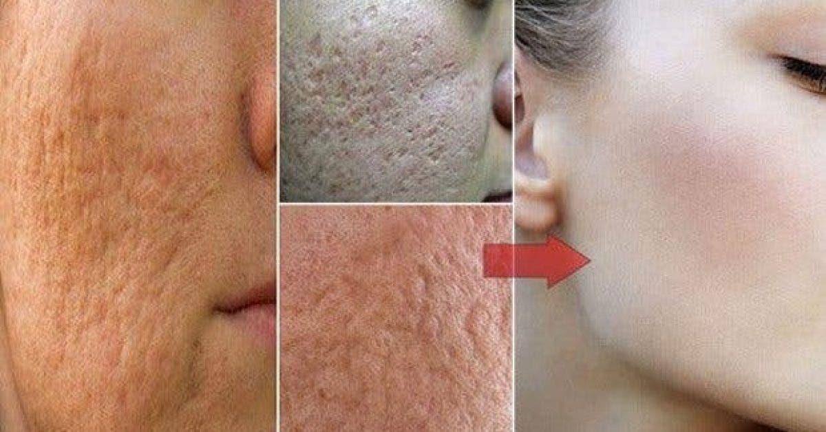 vous aurez besoin dun seul ingredient pour vous debarrasser des pores encombres et dilates 1
