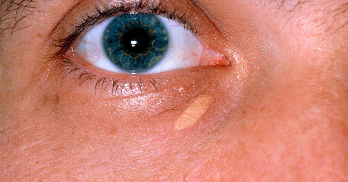 Le xanthélasma : ces taches sur les paupières qui peuvent indiquer des problèmes cardiaques