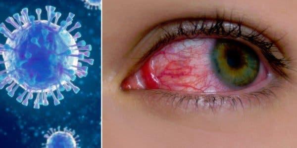 yeux-rouges--un-symptome-du-covid-a-surveiller