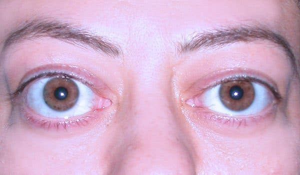yeux4